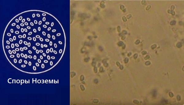 Споры ноземы под микроскопом