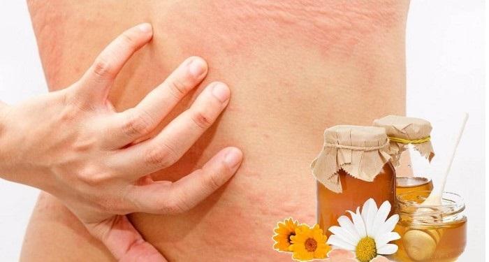 Аллергическая реакция на мед