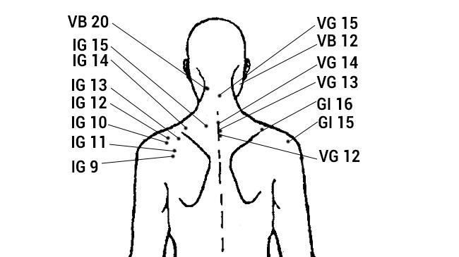 Схема укусов