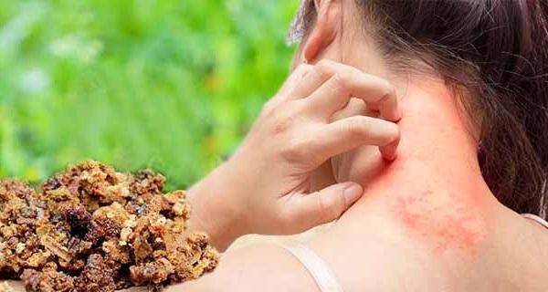 Аллергия на продукты печеловодства