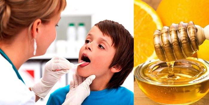 При ангине рекомендован мед