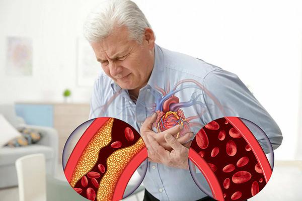 При ишемической болезни
