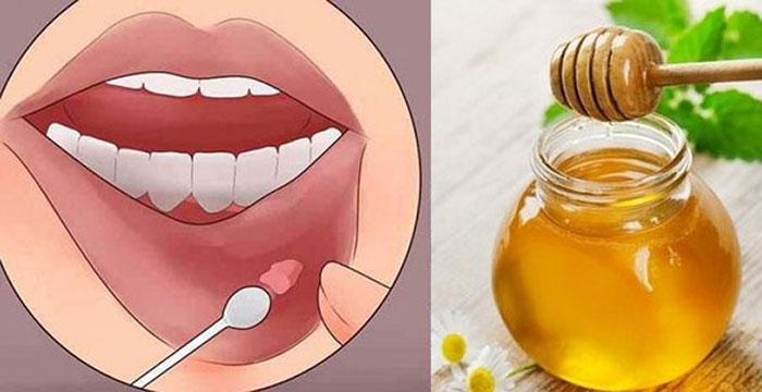Смазываем язвочки во рту медом